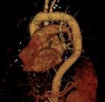 강동경희대병원 대동맥수술 증례 - 대동맥궁 치환술 (1)