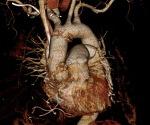 강동경희대병원 대동맥수술 증례 - 급성 대동맥 박리의 수술 (1) , 60세 여자환자