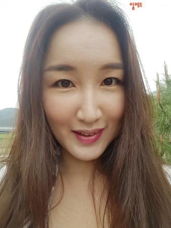 프락셀 받고 모공 고민 줄이기 feat. 루미에클리닉