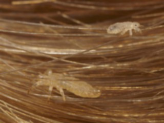 how to tell if you have lice in your hair