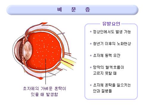 눈에 먼지, 눈에 머리카락, 눈앞에 먼지, 눈앞에 머리카락, 비문증, 건강, 비문증 원인, 비문증 치료,