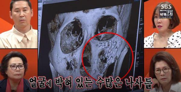 이상민 철심 엑스레이 사진