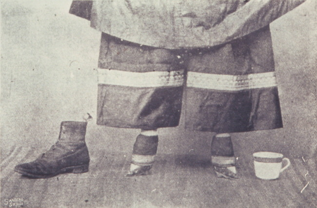 전족 여성 Chinese_foot binding_lady's_feet
